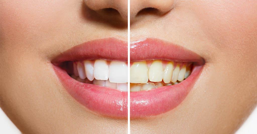 Zahnarzt Viernheim - Bleaching 1